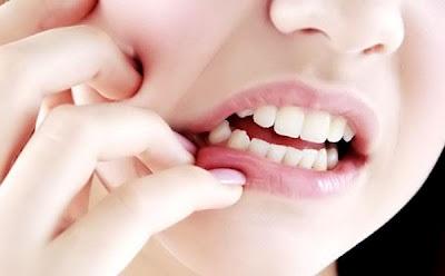 hal yang bisa membuat gigi kuning