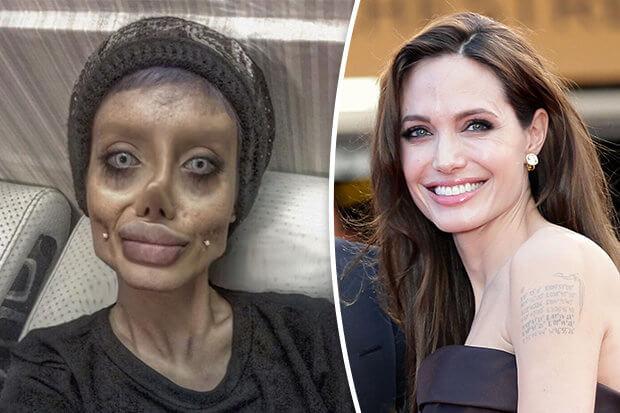 Oplas 50 Kali Demi Mirip Angelina Jolie, Gadis Ini Malah Mirip Zombie