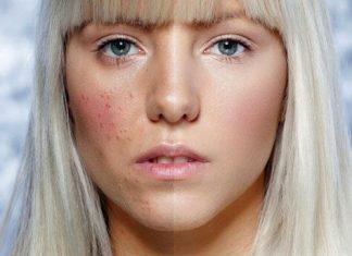 No Filter & Shame-Free Acne, Tren Kecantikan Terbaru di Instagram