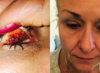 Malas Bersihkan Makeup? Jangan Sampai Mengalami Hal Mengerikan Ini Juga, Ladies!