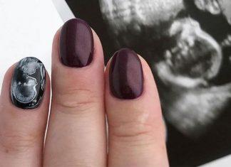 Ultrasound Nail Art: Yay or Nay?