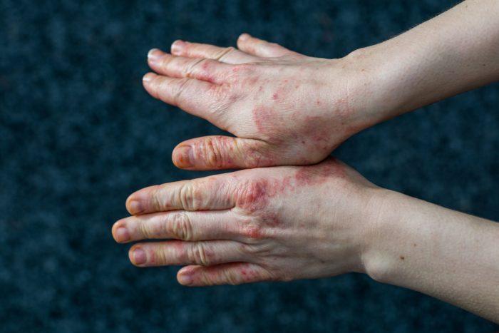 Tips Mengatasi Eczema Secara Alami