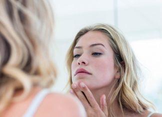 Ini Cara Basmi Cystic Acne