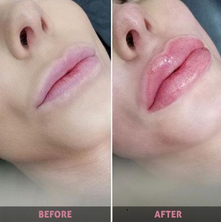 Lip Blushing: Tren Terbaru Dalam Dunia Kecantikan