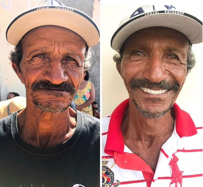 Dokter Gigi Asal Brasil Traveling untuk Rawat Gigi Orang-Orang Tak Mampu, Inilah 8 Transformasinya