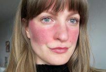 Rekomendasi Produk Skincare Buat Kamu yang Memiliki Masalah Rosacea