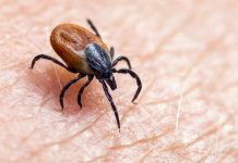 Segala yang Penting Diketahui Tentang Penyakit Lyme: Gejala dan Pengobatan