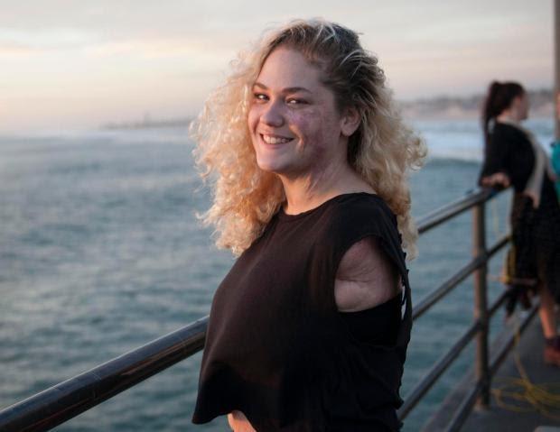 Kehilangan Kaki dan Tangannya, Wanita Ini Sukses Jadi YouTuber