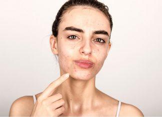 Comedonal Acne: Definisi, Penyebab dan Cara Menanganinya