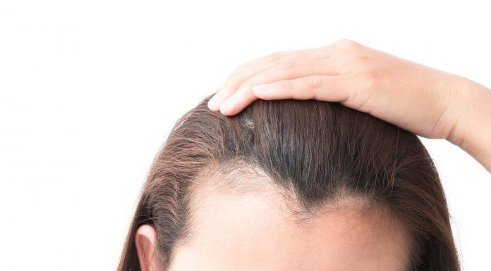 Tips Mengatasi Garis Rambut yang Mulai Menipis atau Menurun
