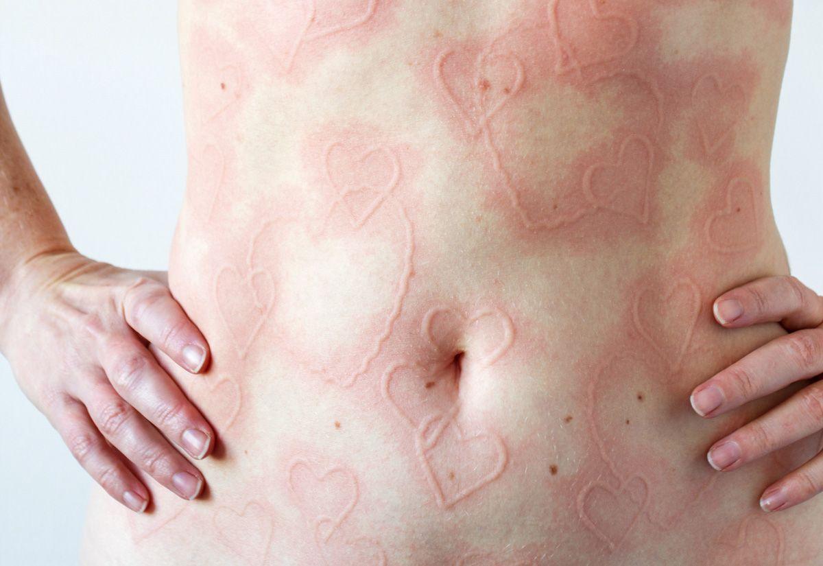 Tips Perawatan Kulit untuk Penderita Dermatographia