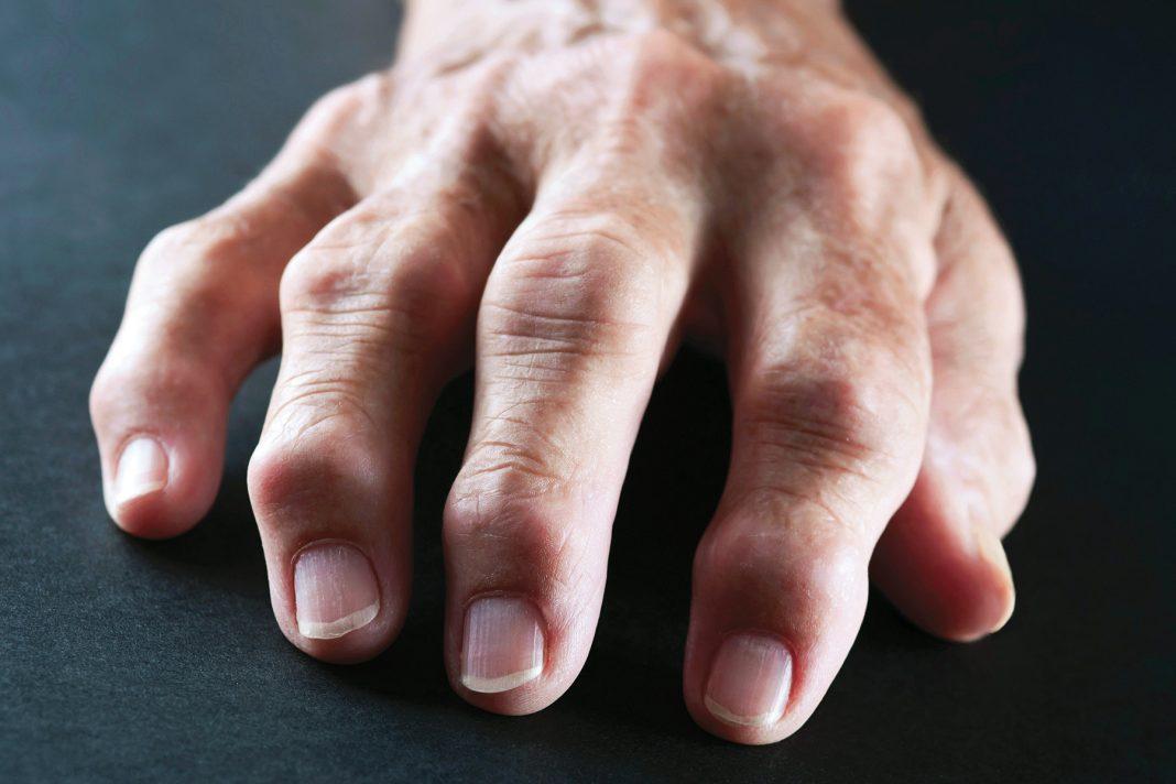 Gejala Rheumatoid Arthritis yang Perlu Kamu Tahu