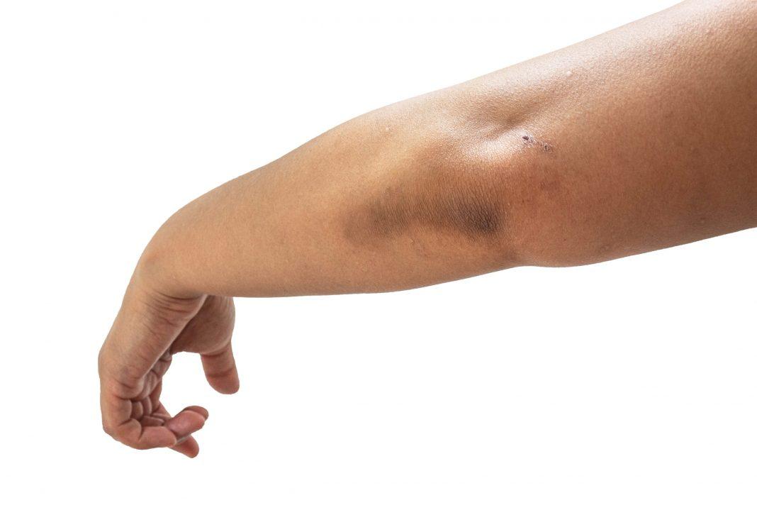 Waspadai Dark Spot Pada Kulit, Bisa Jadi Tanda Awal Diabetes