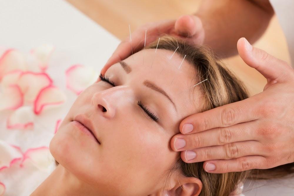 Akupuntur Untuk Perawatan Anti-Aging, Apa Bisa?