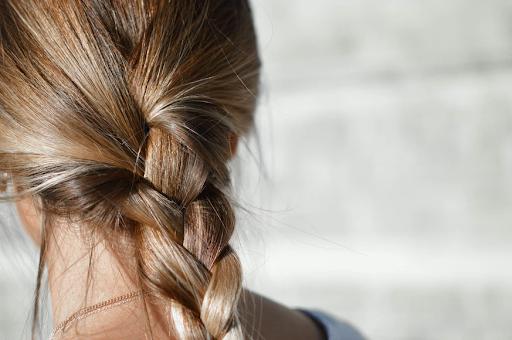 Kondisi Rambut Ternyata Menunjukkan Kondisi Kesehatan Seseorang, Cek Penjelasan Dokter Ini